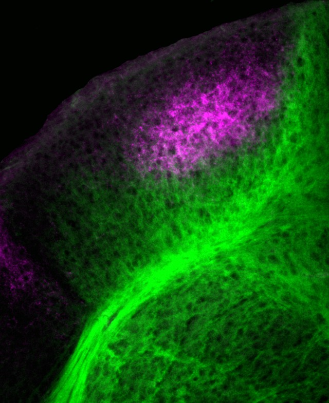 This image taken from a week-old mouse's brain shows cortical axons (green) and retinal axons (purple) forming their complex web of neural connections in the area of the brain dedicated to processing visual signals.