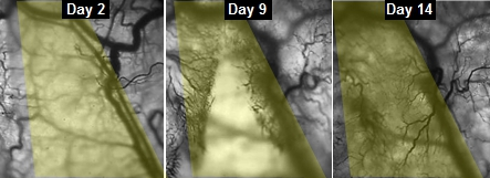 This series of images shows the progress  of veins slowly growing into implanted engineered muscle fibers.